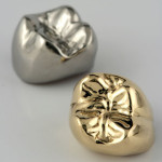 gold-plating-cast-dental-crown-at-low-price